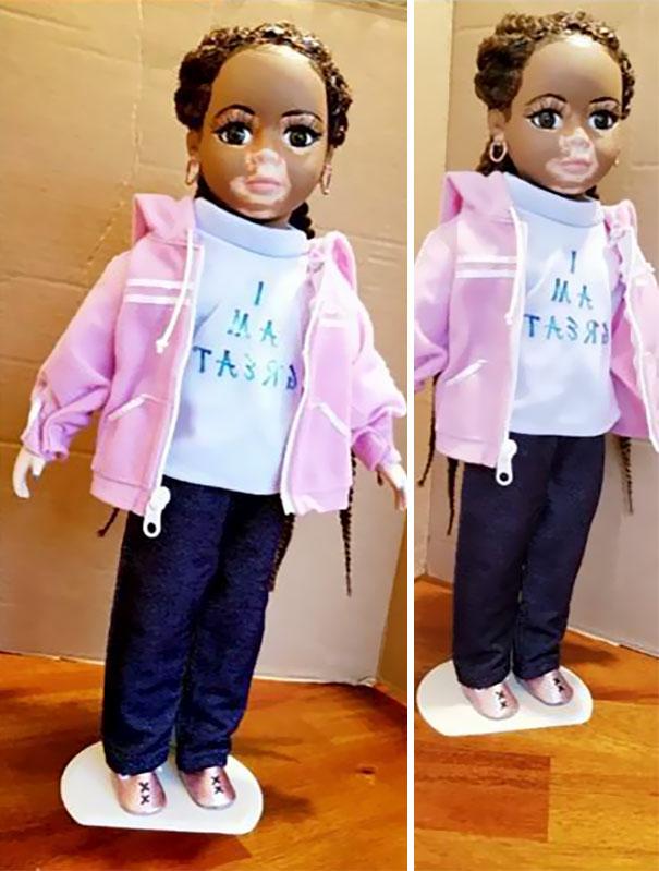 vitiligo-dolls-3