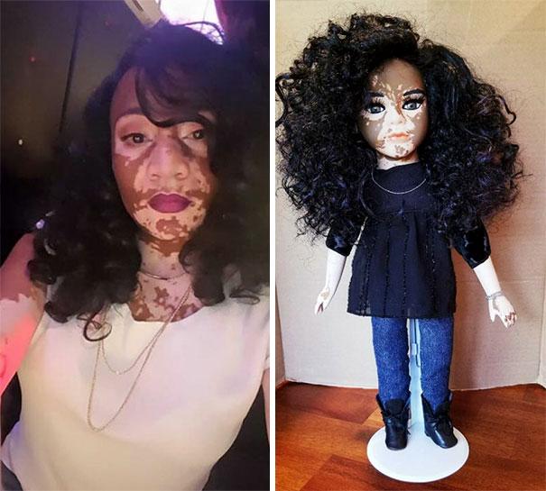 vitiligo-dolls-5