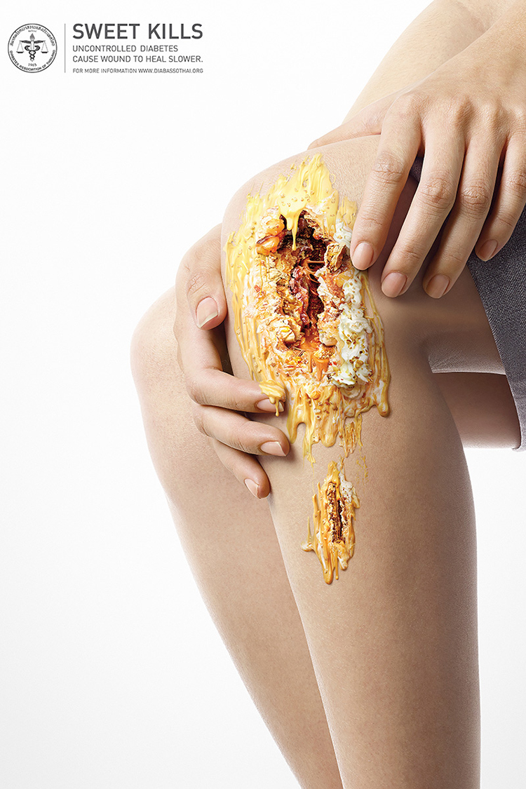 sweet-kills-diabetes-campaign