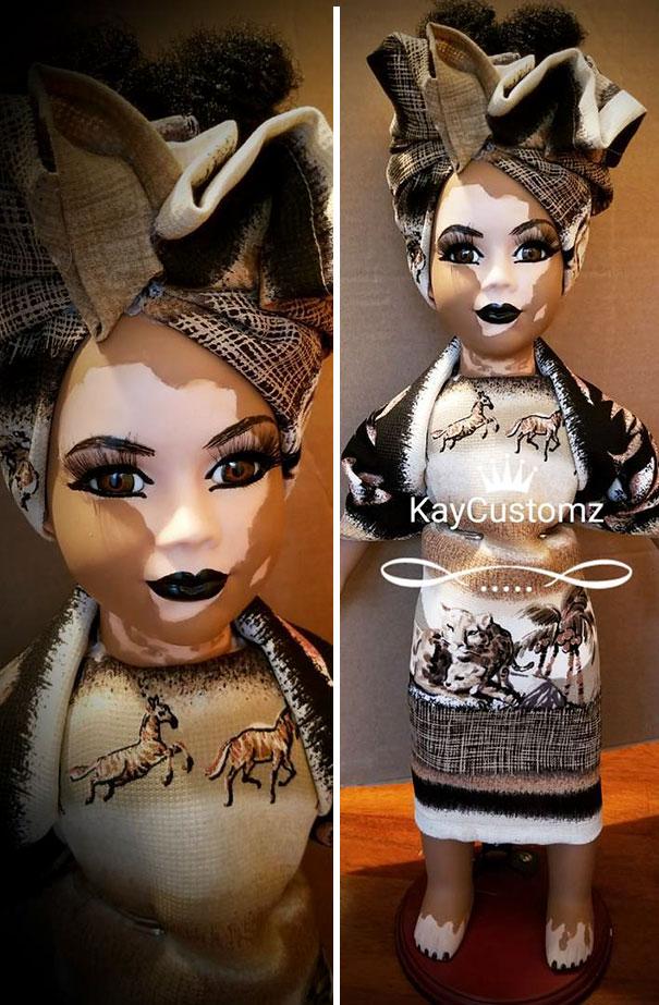 vitiligo-dolls-2