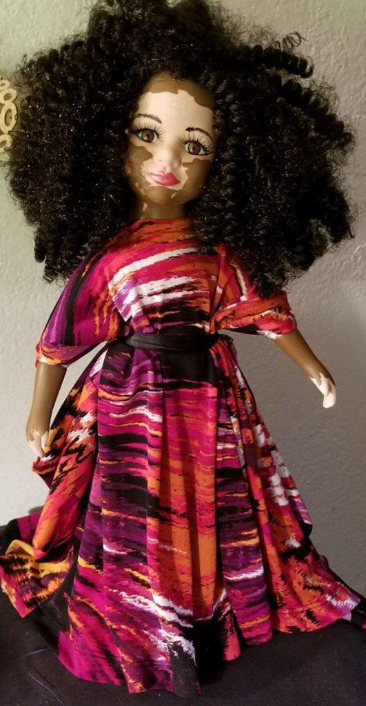 vitiligo-dolls-4