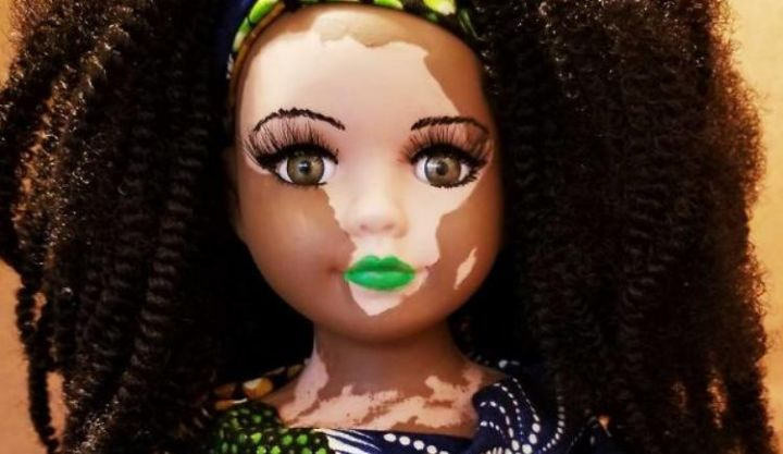 Dolls With Vitiligo To Comfort Kids Who Have this Rare Condition
